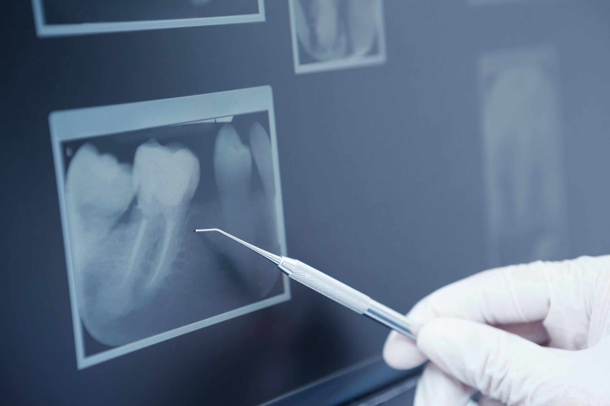 Analisi radiografia specifica - sorrisi felici